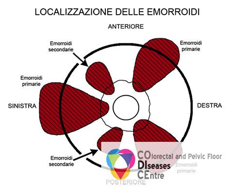 Classificazione Emorroidi