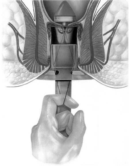 Logo emorroidi